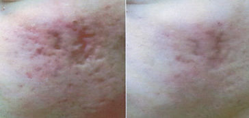 Client #2 - Before & After Rejuvapen Microneedling