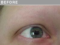 Client #2 - Before Alopecia Permanent Eyebrow Makeup