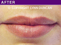 Client #26 - Completed Lips Example #4