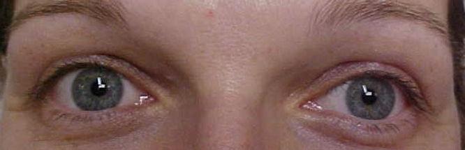 Client #7 - Before Permanent Makeup Eyeliner