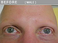 Before Trichotillomania Eyelash Permanent Makeup