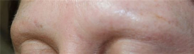 Client #24 - Before Permanent Makeup Eyebrows #2