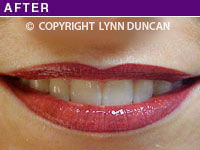 Client #32 - Completed Lips Example #10