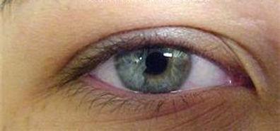 Client #15 - Before Permanent Makeup Eyeliner