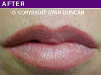 Client #17 - After Permanent Natural Lip Liner
