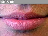 Client #7 - Before Permanent Lips Procedure