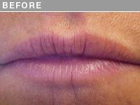 Client #1 - Before Permanent Lips Procedure
