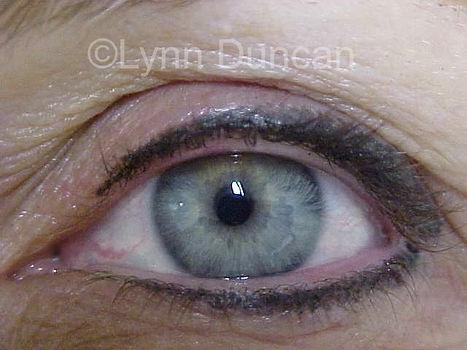 Client #9 - After Permanent Makeup Eyeliner #2