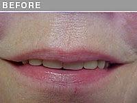 Client #10 - Before Permanent Lips Procedure