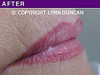 Client #31 - Completed Lips Example #9