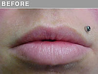 Client #3 - Before Permanent Lips Procedure