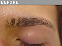 Before Hair Stroke Brow Camouflage