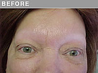 Before Alopecia Permanent Eyebrow Makeup