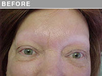 Before Alopecia Permanent Eyebrow Makeup