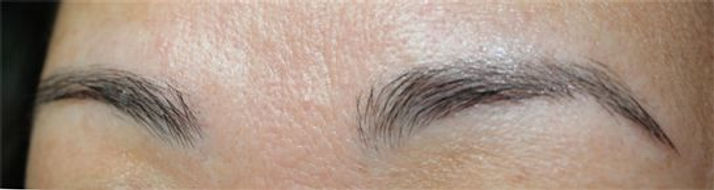 Client #20 - Before Permanent Makeup Eyebrows #2