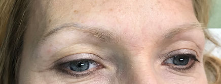 Befor Microblading Brows