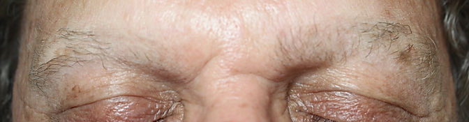 Client #1 - Before Men's Permanent Makeup Eyebrows