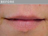 Client #6 - Before Permanent Lips Procedure