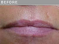 Client #21 - Before Permanent Lips Procedure