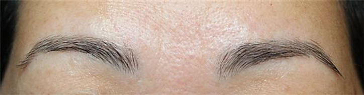 Client #20 - Before Permanent Makeup Eyebrows