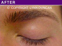 After Hair Stroke Brow Camouflage