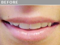 Client #11 - Before Permanent Lips Procedure