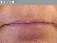 Client #4 - Before Permanent Lips Procedure