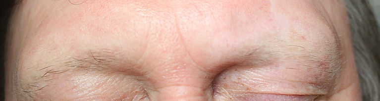Client #2 - Before Men's Permanent Makeup Eyebrows