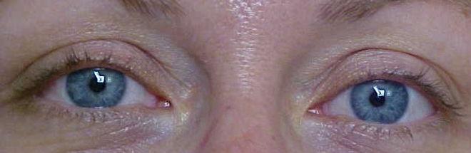 Client #4 - Before Permanent Makeup Eyeliner
