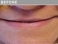 Client #19 - Before Permanent Lip Extension