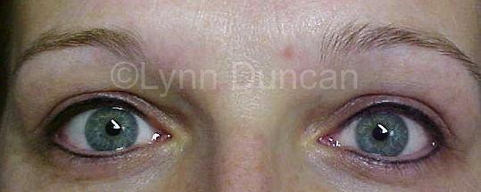 Client #7 - After Permanent Makeup Eyeliner