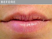 Client #2 - Before Permanent Lips Procedure
