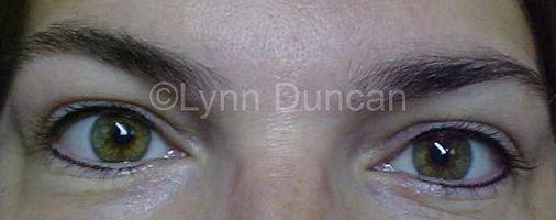 Client #8 - After Permanent Makeup Eyeliner