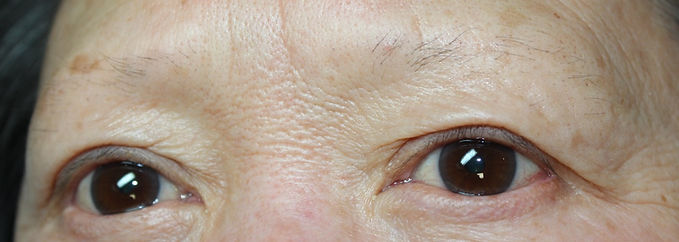Client #13 - Before Permanent Makeup Eyebrows #2