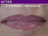 Client #27 - Completed Lips Example #5