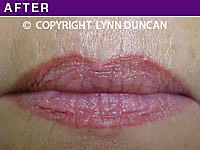 Client #60 - Completed Lips Example #38