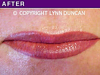Client #4 - After Permanent Lips Procedure