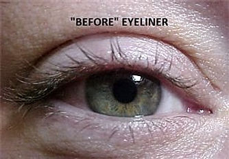 Client #19 - Before Permanent Makeup Eyeliner