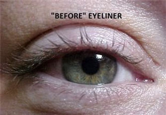 Client #19 - Before Permanent Makeup Eyeliner