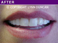 Client #28 - Completed Lips Example #6