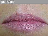 Client #20 - Before Permanent Lips Procedure