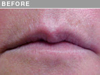 Client #14 - Before Dramatic Lip Liner