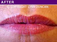 Client #1 - After Permanent Lips Procedure