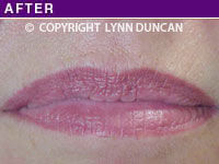 Client #52 - Completed Lips Example #30