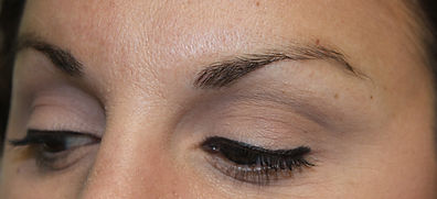 Client #5 - Before Eyebrow Microblading #2