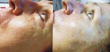 Before & After Rejuvapen Microneedling
