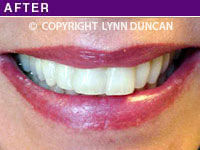 Client #34 - Completed Lips Example #12