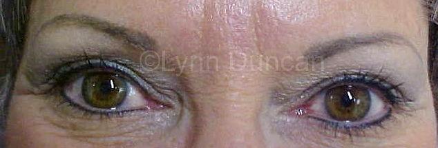 Client #5 - After Permanent Makeup Eyeliner