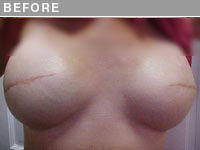 Before 3D Nipple and Areola Repigmentation