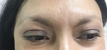 Client #11 - Before Eyebrow Microblading